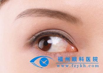 女人 泉州/斜视是指两眼视轴不正,有偏内、偏外或上、下不正的情形。...